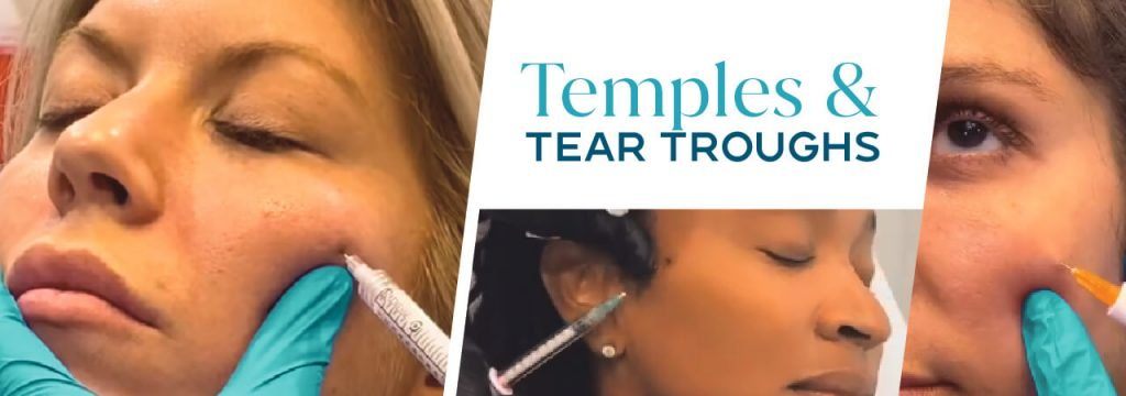 Temples and Tear Troughs Training Classes