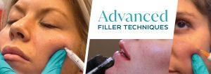 Advanced Filler Techniques